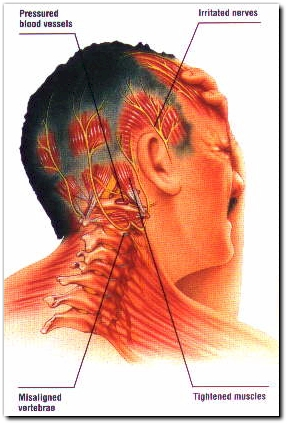 Sydney Osteopath Headaches Pain Relief